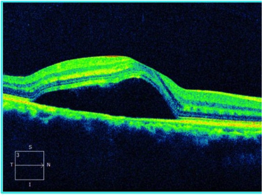 central serous retinopathy Central serous retinopathy (csr), also known as central serous chorioretinopathy (csc or cscr), is an eye disease that causes visual impairment, often temporary, usually in one eye when the disorder is active it is characterized by leakage of fluid under the retina that has a propensity to accumulate under the central macula.